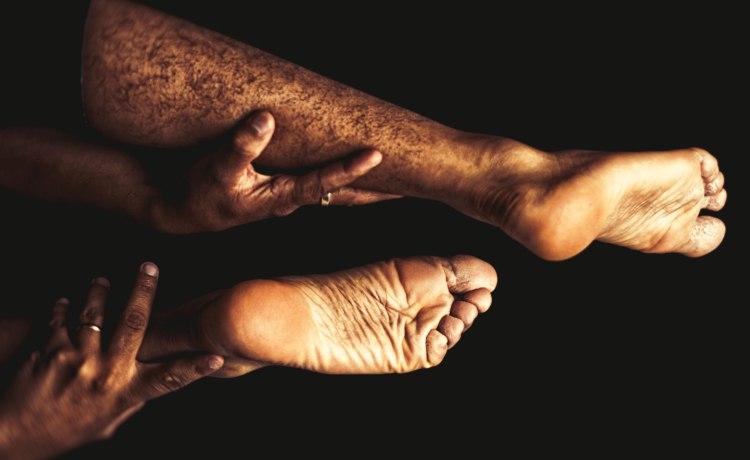 como ajudar a má circulação nos dedos dos pés